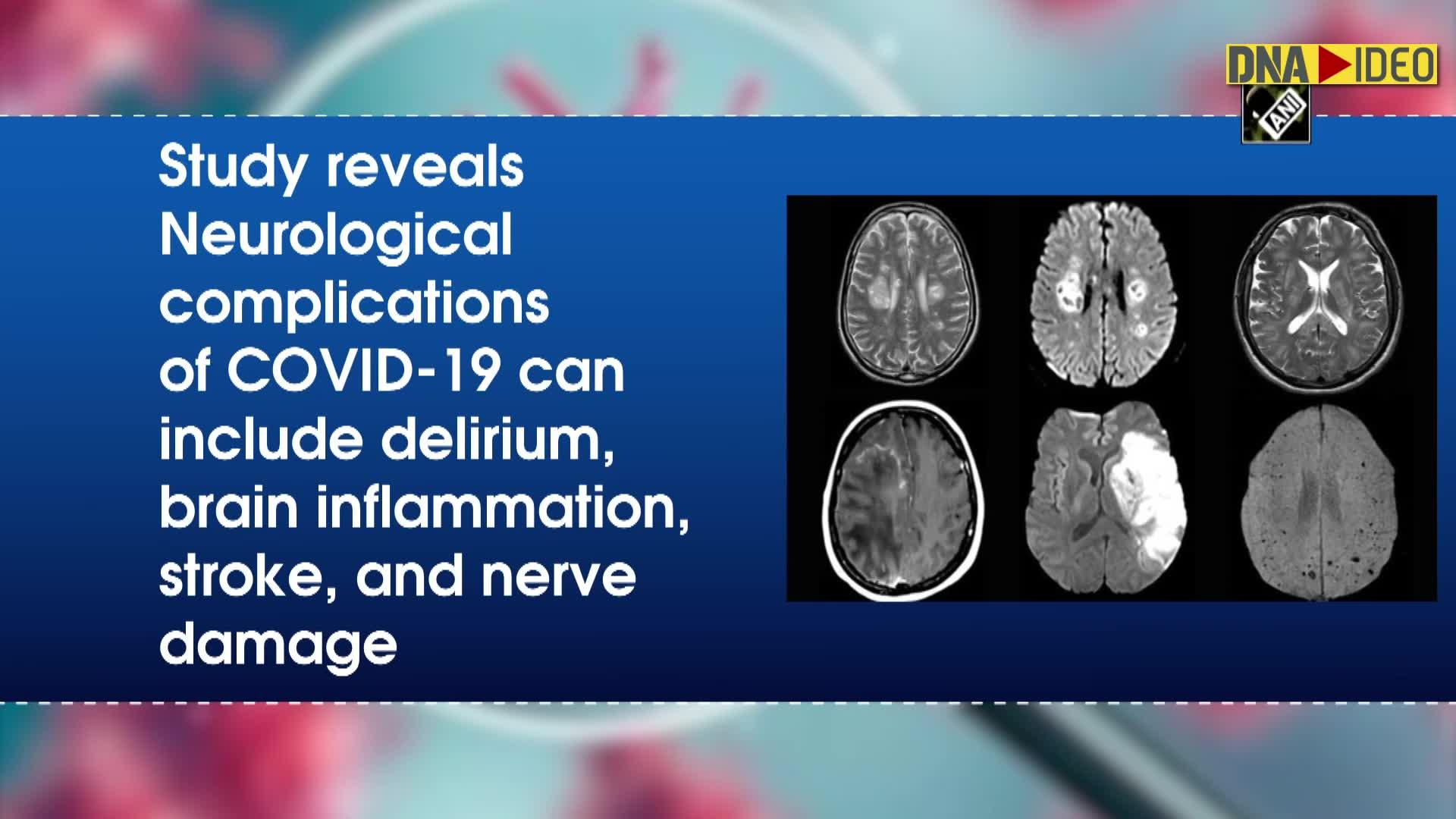 Study links increase in delirium, rare brain inflammation and stroke to COVID-19 - DNA India