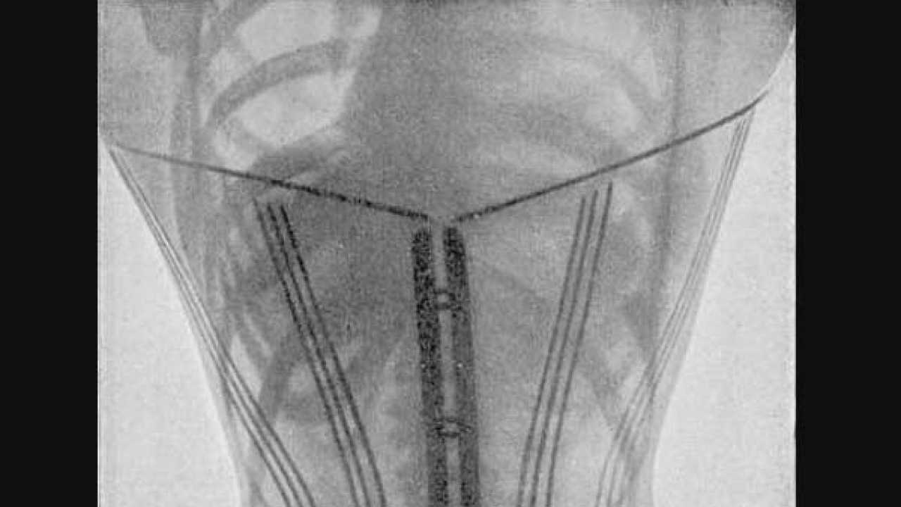 55d9af9a6e 100-year-old X-rays reveal how corset-clad Victorian women endured pain
