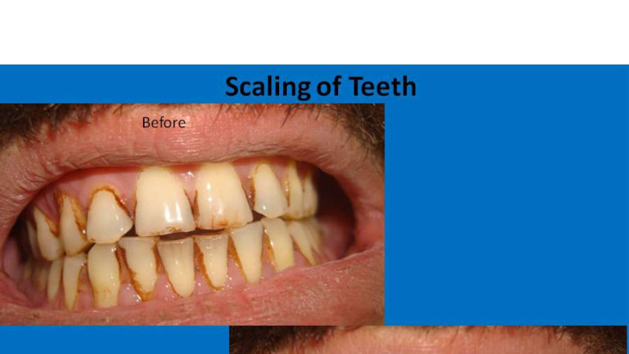 Everything you need to know about teeth scaling