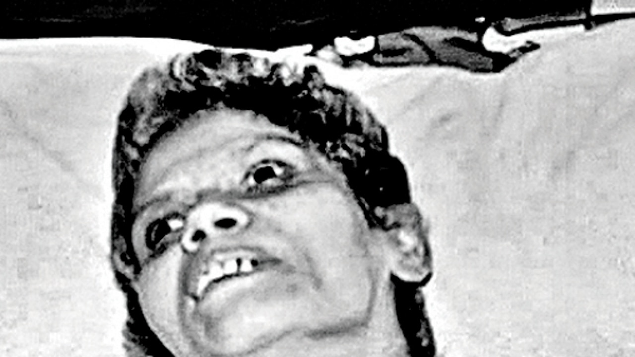 Aruna Shanbaug's case is rare in medical history: Doctors