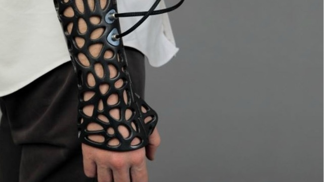 3D printed casts to treat fractures?