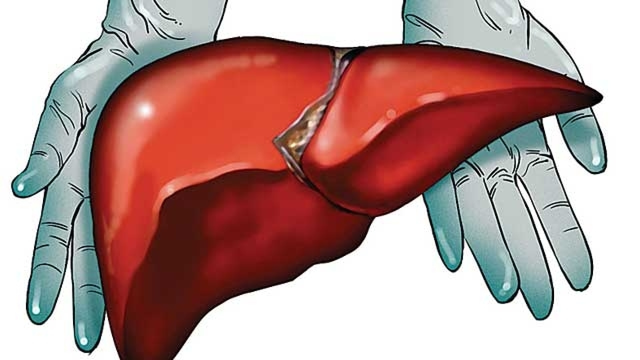 New Delhi Man Receives Liver In Donation After Cardiac Death