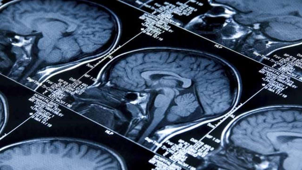 Scans Show Possible Link Between Brain >> Scans On Us Diplomats In Cuba Show Something Happened To The Brains