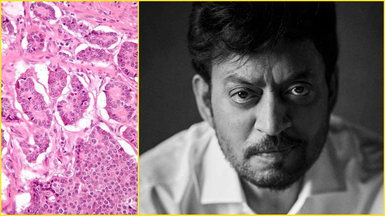 neuroendocrine cancer pain helminths droguri