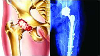 World Osteoporosis Day: Meaning, symptoms, treatment